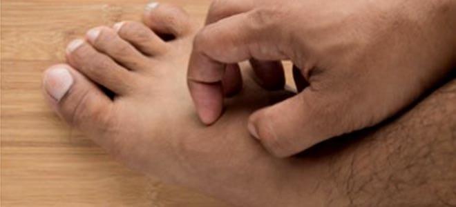 Аллергия на укусы клопов причины симптомы опасность реакция оказание первой помощи