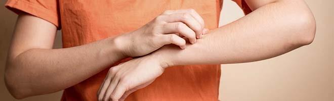 Мазь от укусов постельных клопов убираем зуд и воспаление 05