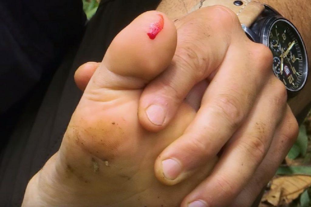 Гигантский водяной клоп Белостома опасность для человека описание и фото укус пальцаноги