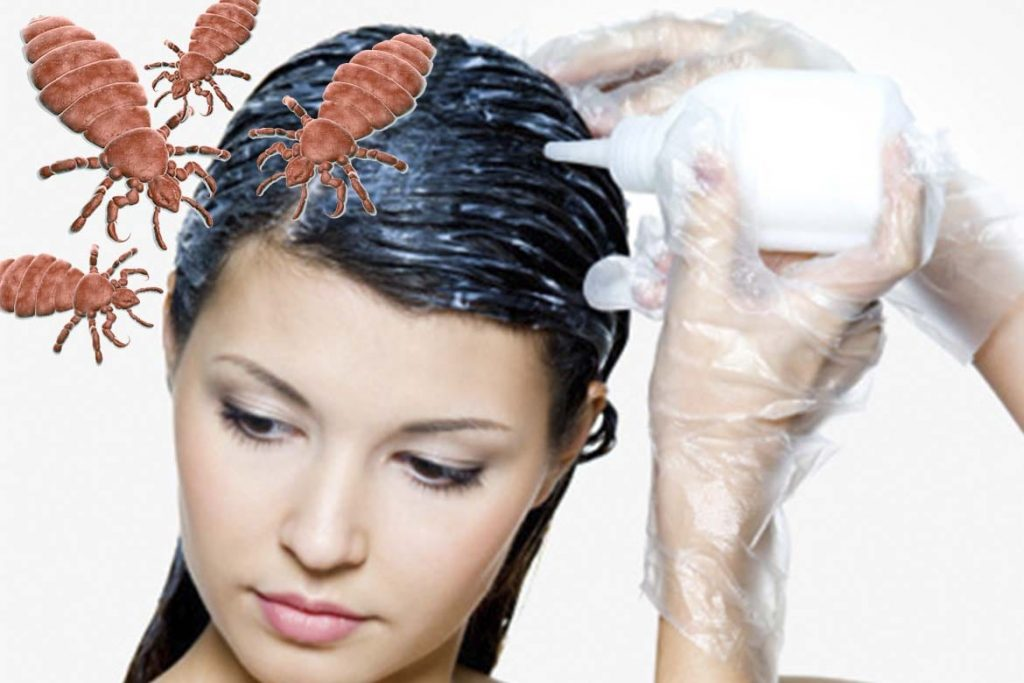 7 красок для волос – убийц вшей и гнид преимущества и недостатки