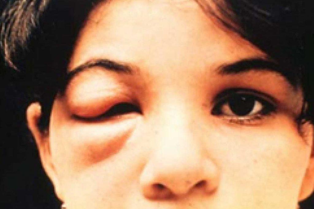 Поцелуйные клопы как оградить себя от смертельного укуса болезнь Шагаса профилактика