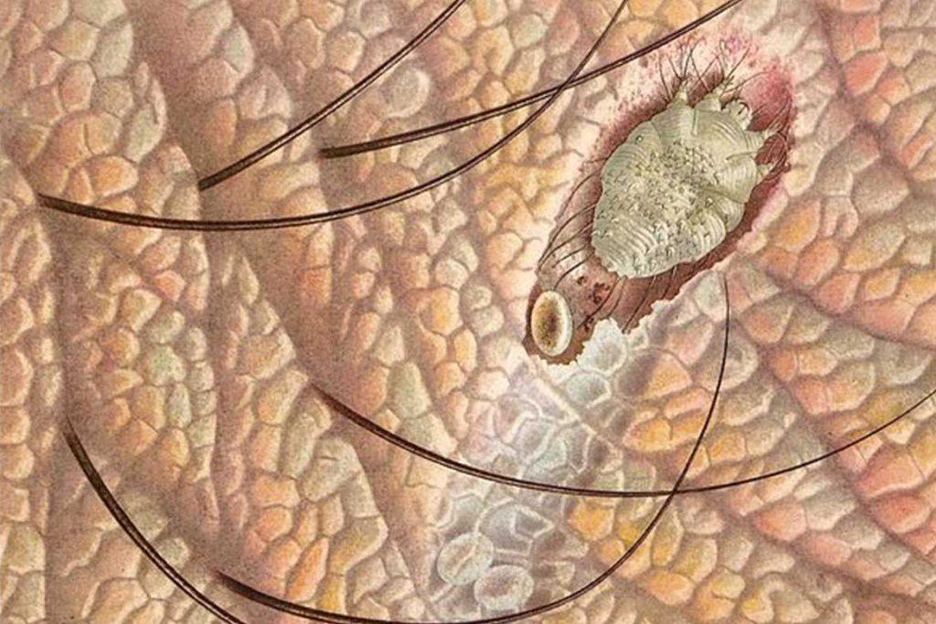 Чесоточный клещ Sarcoptes scabiei возбудитель чесотки как выглядит симптомы как поставить диагноз и как лечить в домашних условиях вид лабиринта