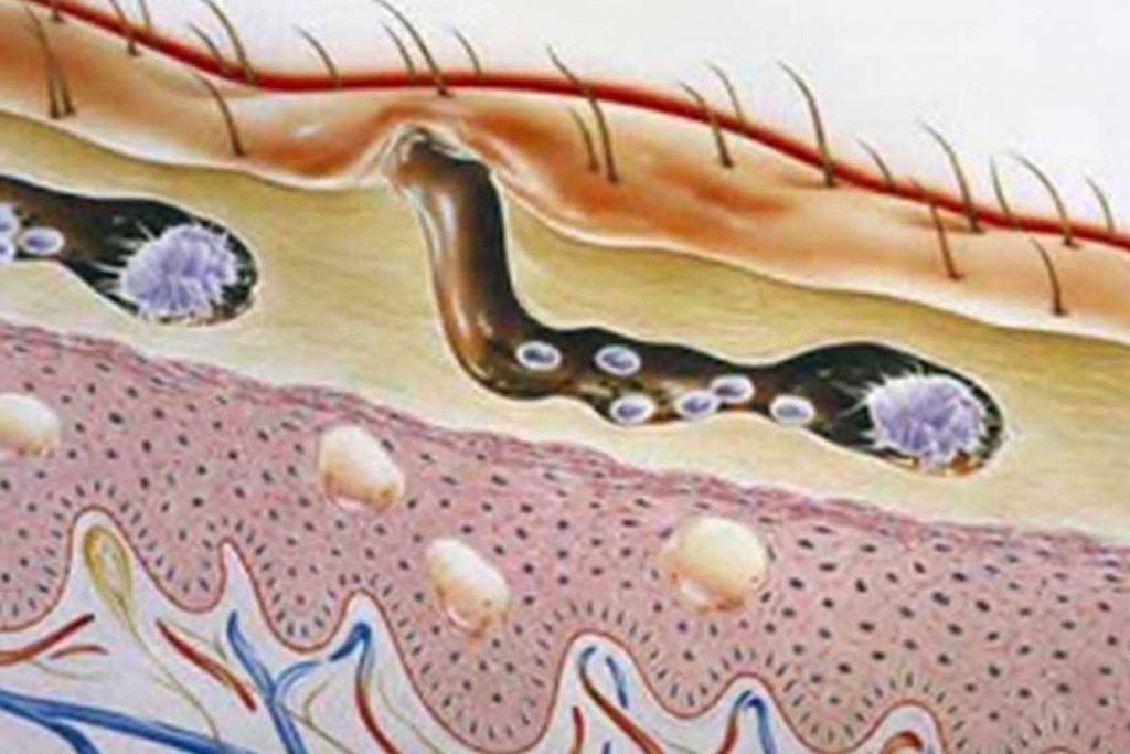 Чесоточный клещ Sarcoptes scabiei возбудитель чесотки как выглядит симптомы как поставить диагноз и как лечить в домашних условиях первые симптомы