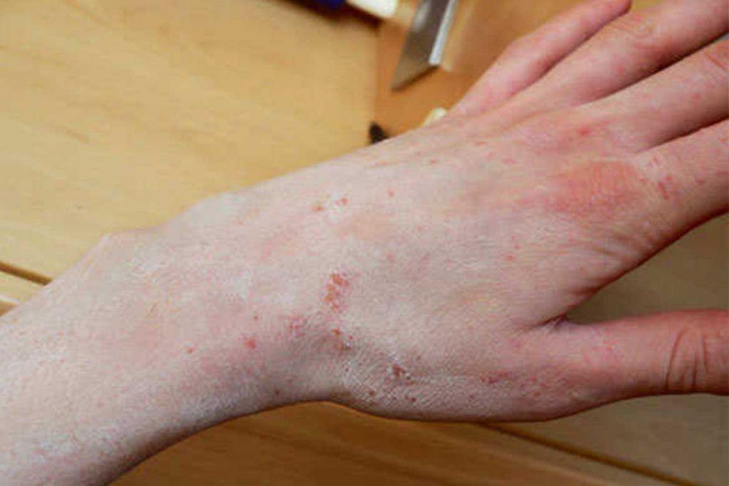 Чесоточный клещ Sarcoptes scabiei возбудитель чесотки как выглядит симптомы как поставить диагноз и как лечить в домашних условиях на руке