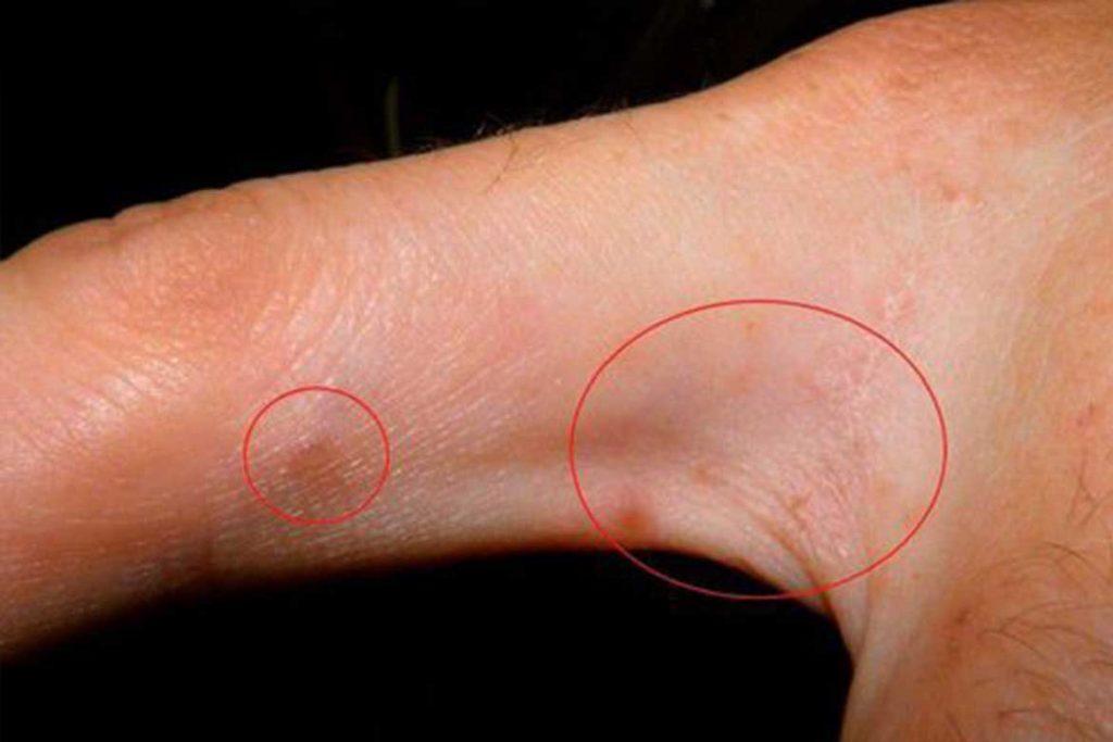 Чесоточный клещ Sarcoptes scabiei возбудитель чесотки как выглядит симптомы как поставить диагноз и как лечить в домашних условиях Псевдосаркоптоз