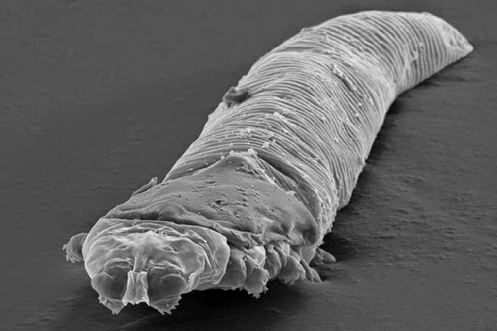 Глазной ресничный клещ Demodex в ушах