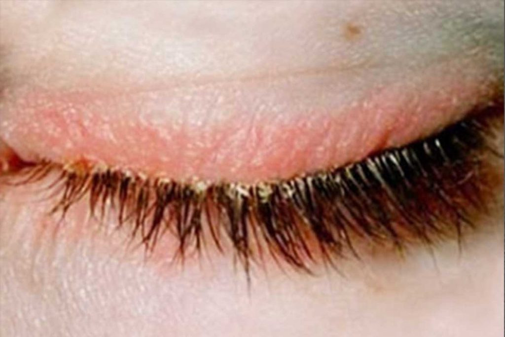 Глазной ресничный клещ Demodex на ресницах