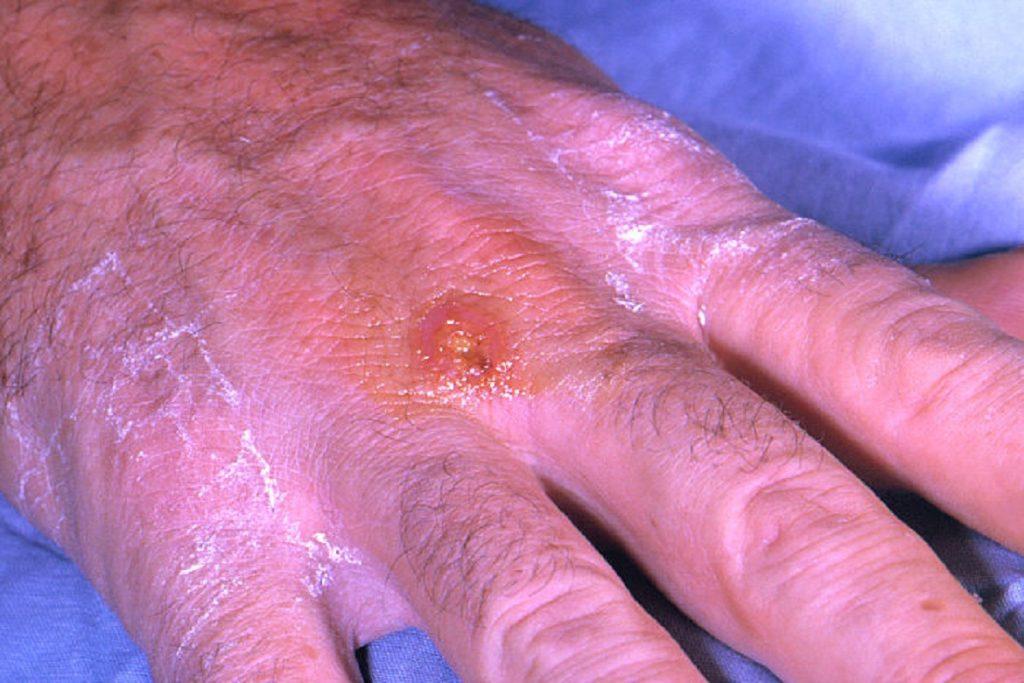 Чем опасны клещи для человека – профилактика энцефалита и туляремии