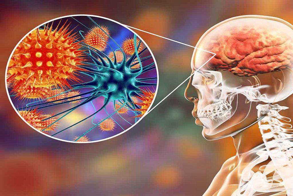 Чем опасны клещи для человека – профилактика энцефалита и его признаки