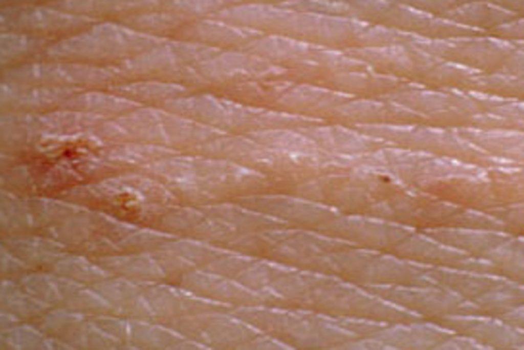 Чем опасны клещи для человека – профилактика энцефалита ходы зудня под кожей
