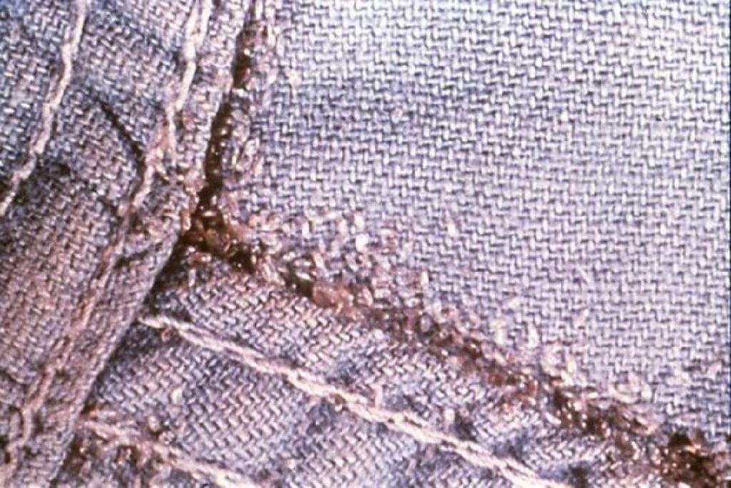 Насекомые (жуки), похожие на клещей – опасны или нет, как от них избавиться, вши платяные