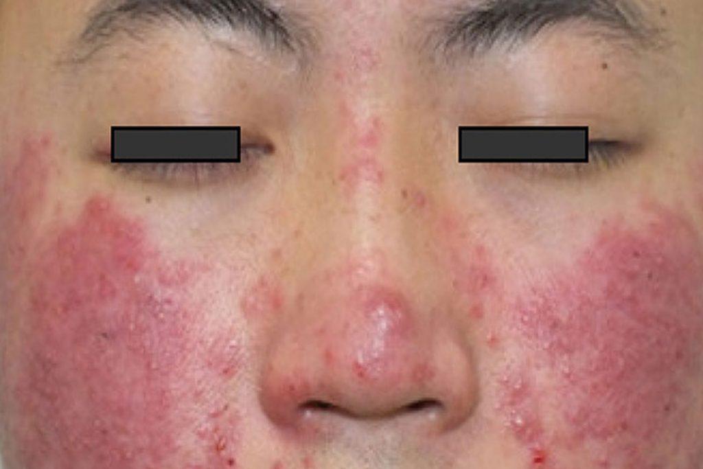 Подкожный клещ (Demodex) на лице у человека - этапы