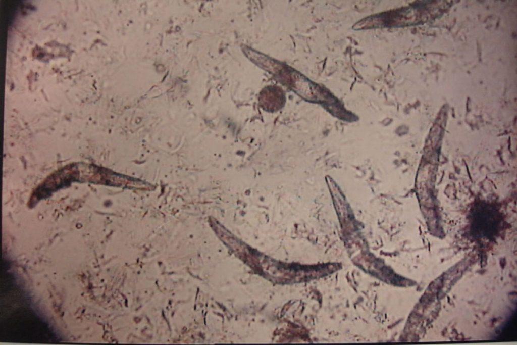 Подкожный клещ (Demodex) на лице у человека - движение клещей
