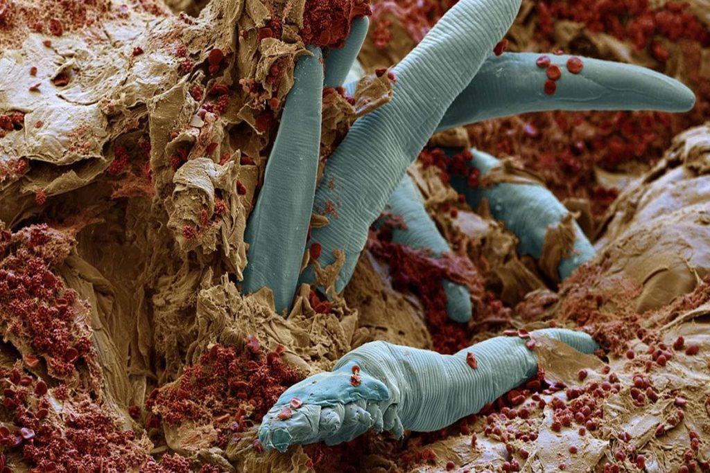 Подкожный клещ (Demodex) на лице у человека - активизация