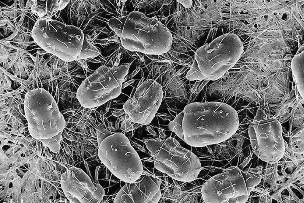 Пылевые (Dermatophagoides) постельные клещи – волосатые клещи
