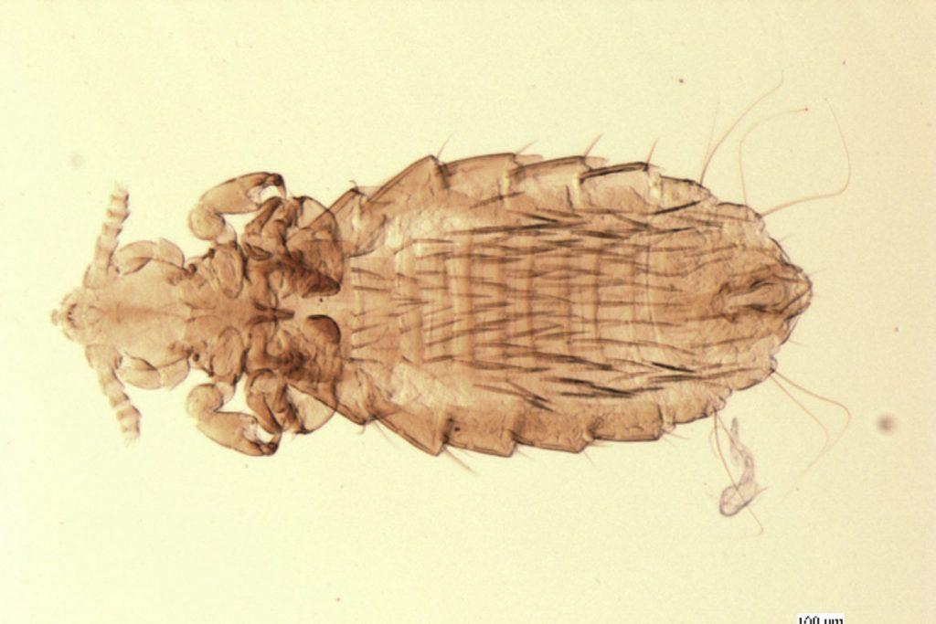 Виды вшей, как опознать паразита - Hoplopleura
