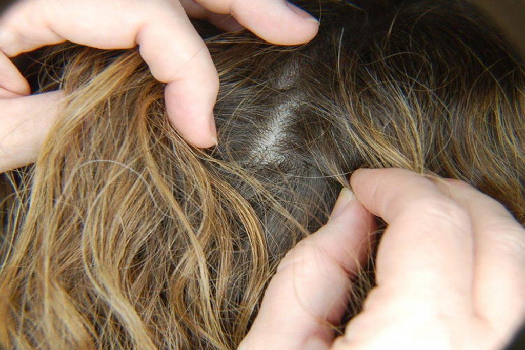 Гниды на волосах: что это, как выглядят, откуда берутся и чем лечить - внешний осмотр