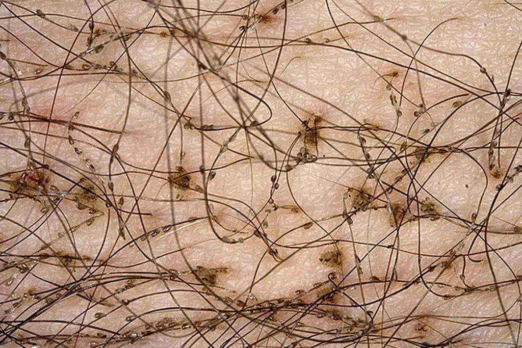 Виды вшей, как опознать паразита - лобковые