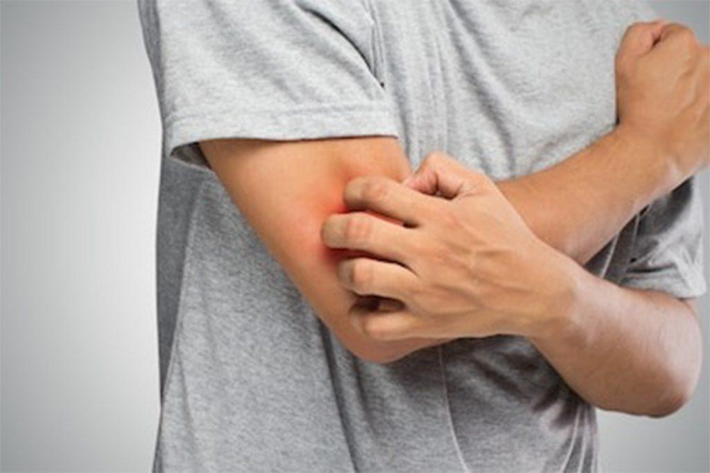 Чешется место укуса клеща – это говорит об инфекции или простое раздражение? Чем снять зуд? Препараты и домашние средства