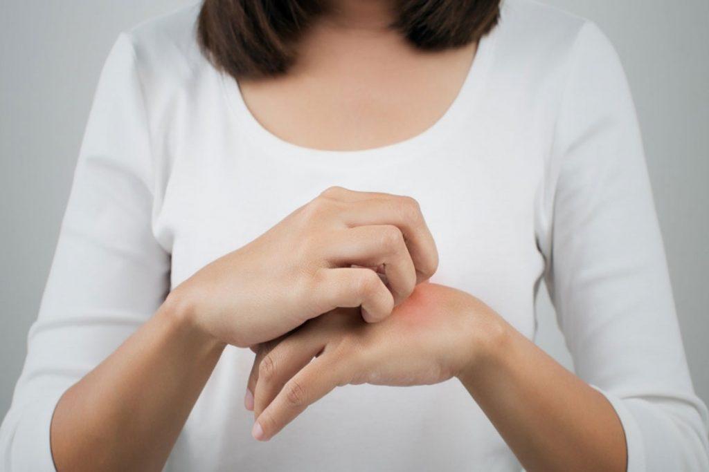 Что делать, если укусил клещ человека – болезнь Лайма.