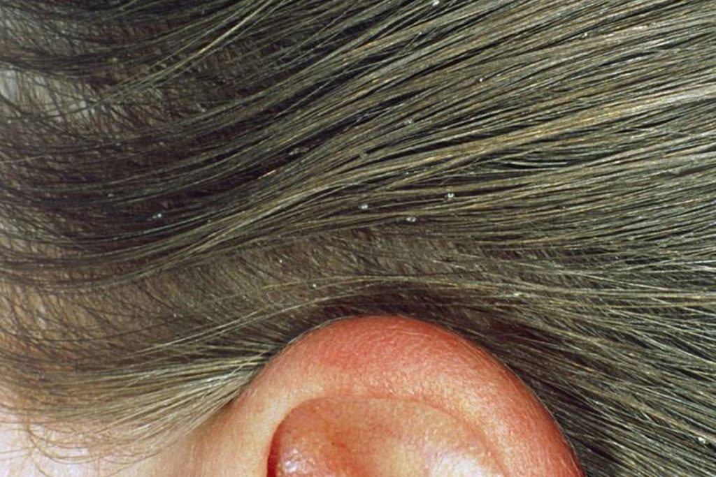 Гниды на волосах: что это, как выглядят, откуда берутся и чем лечить - как появляются