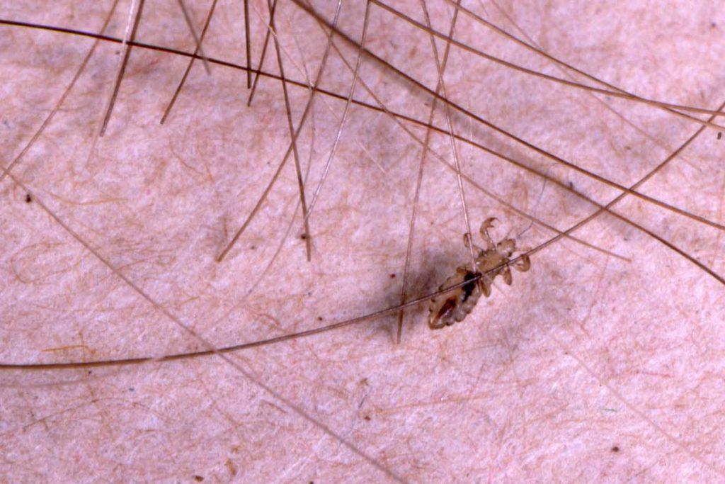 Инкубационный период вшей и гнид у человека - размножение