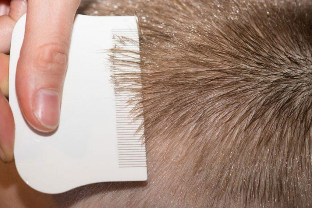 Гниды на волосах: что это, как выглядят, откуда берутся и чем лечить - удаление