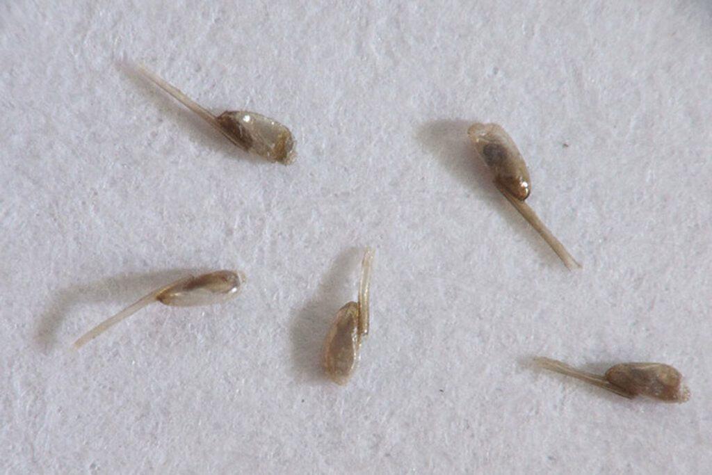 Гниды на волосах: что это, как выглядят, откуда берутся и чем лечить - ка выглядят