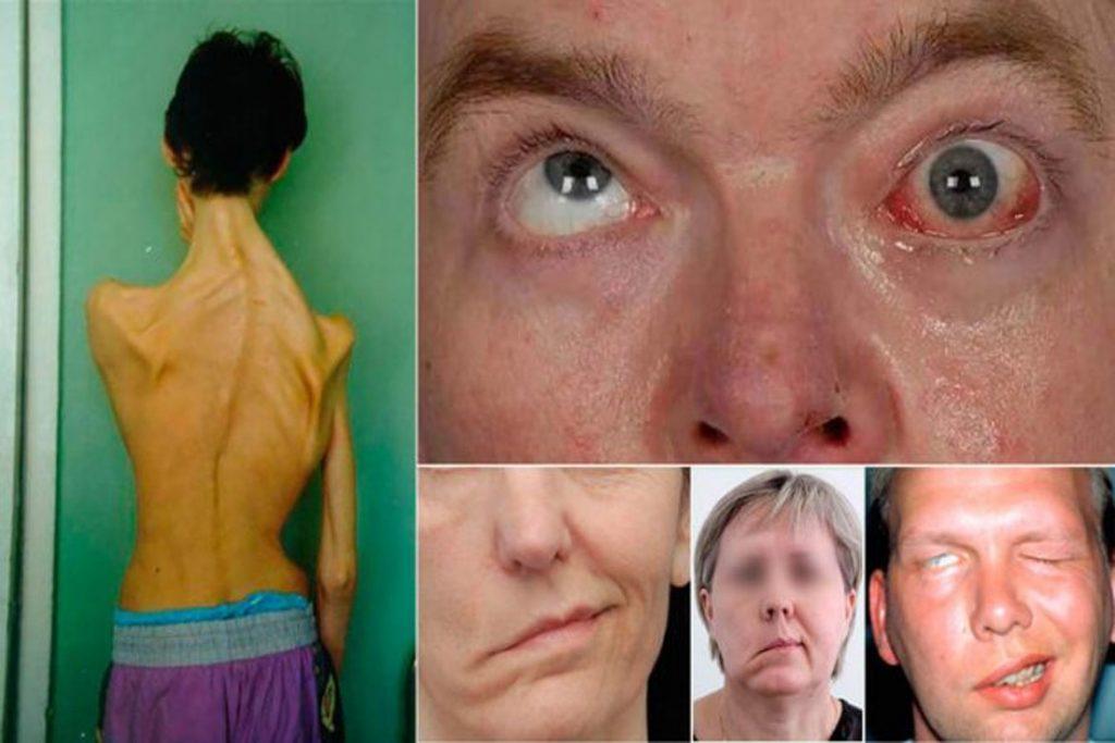 Как провериться на энцефалит без клеща - вид больного