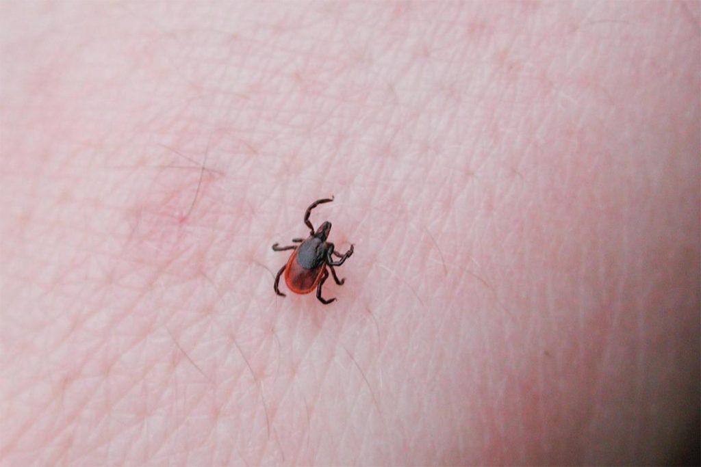 10 безопасных способов, как вытащить клеща из тела человека в домашних условиях, паразит на коже