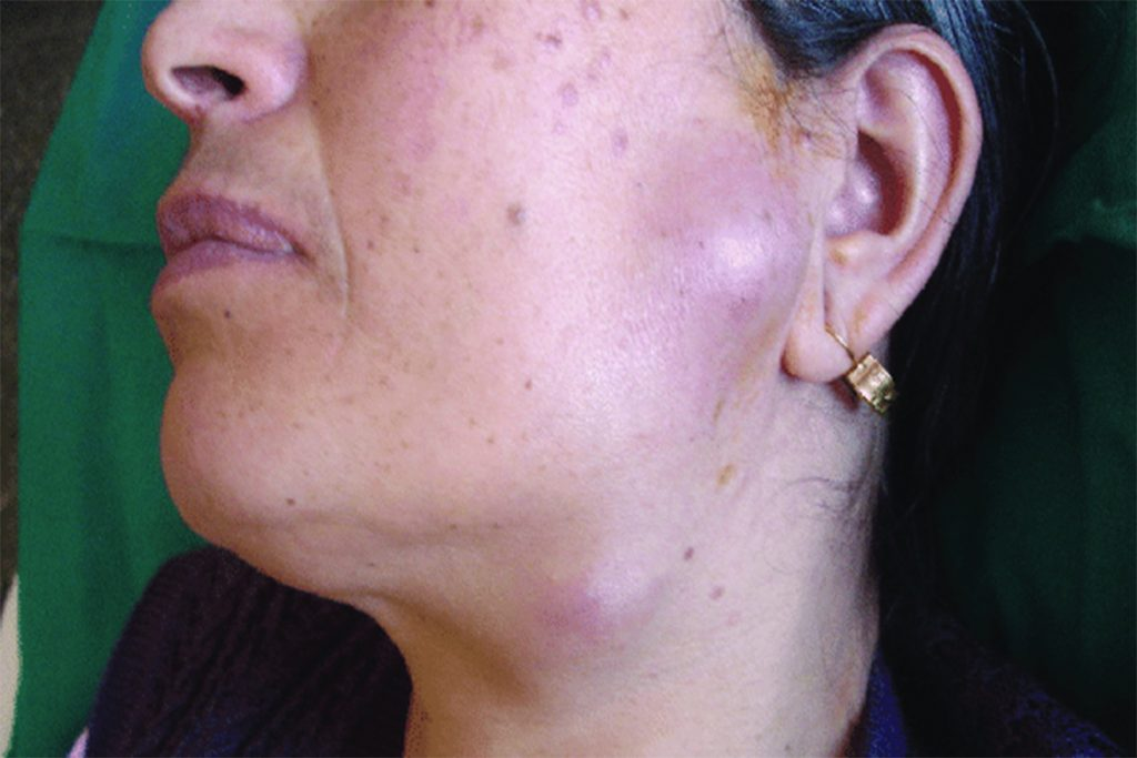 13 клещевых заболеваний, вызванных укусами клещей – возбудитель, симптомы, клиническая картина, лечение, туляремия