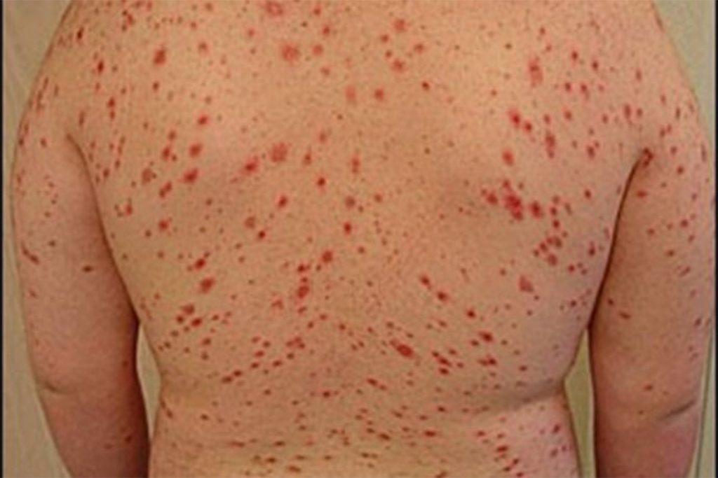 13 клещевых заболеваний, вызванных укусами клещей – возбудитель, симптомы, клиническая картина, лечение, пятнистая лихорадка Скалистых гор