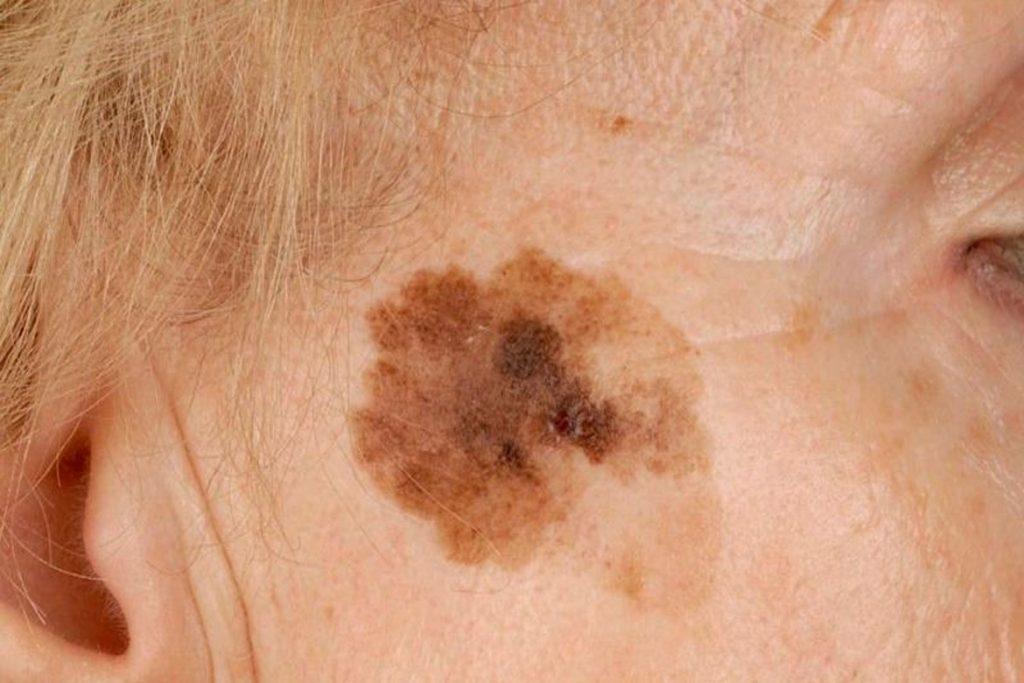 Чем вредны и опасны вши, переносчиками каких болезней они являются - меланоз
