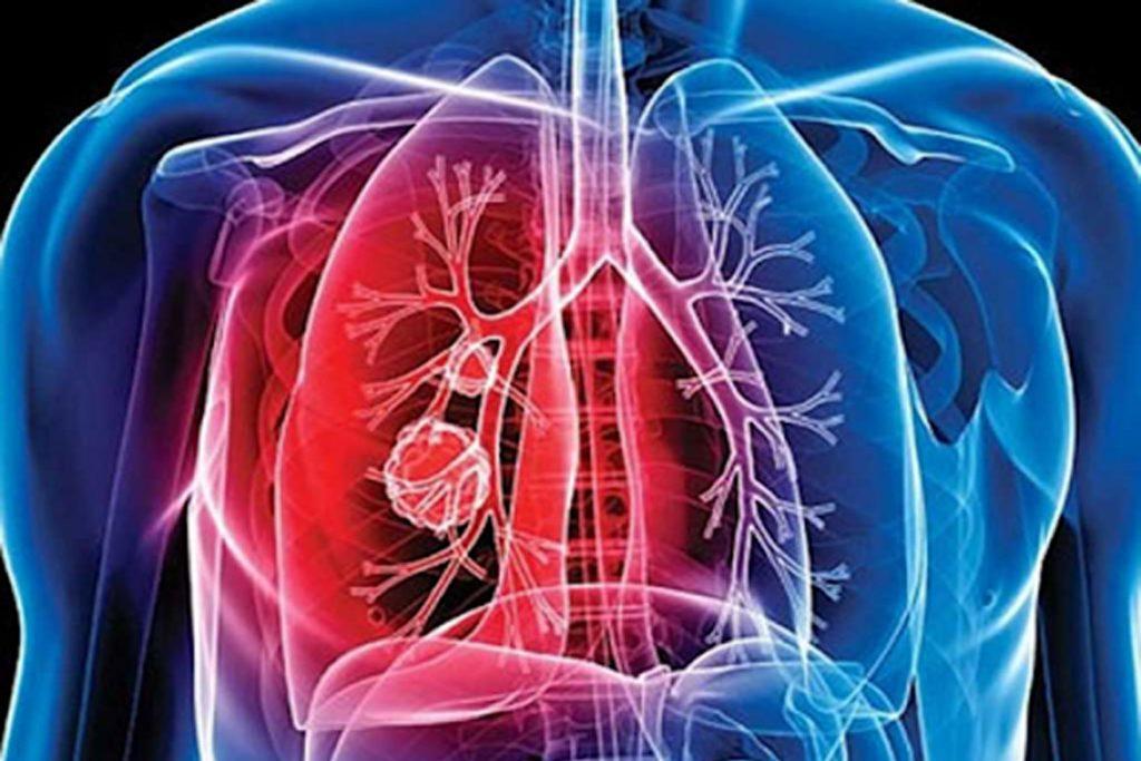 Чем вредны и опасны вши, переносчиками каких болезней они являются - туберкулез