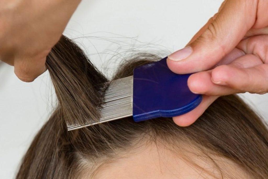 Как быстро избавиться от гнид на длинных волосах - гребень