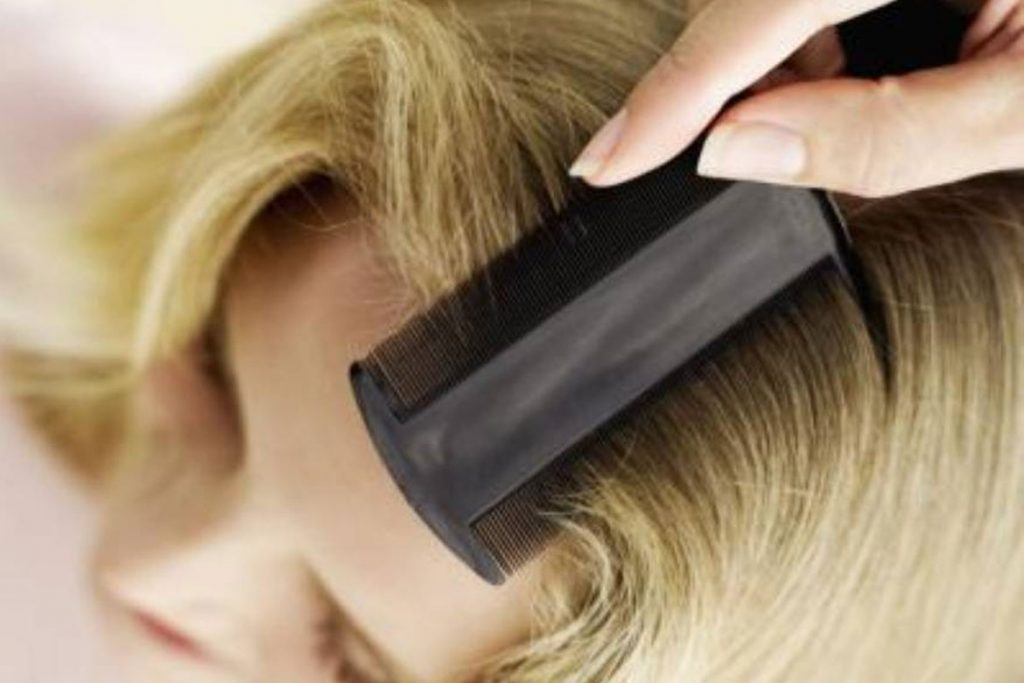 Как быстро избавиться от гнид на длинных волосах
