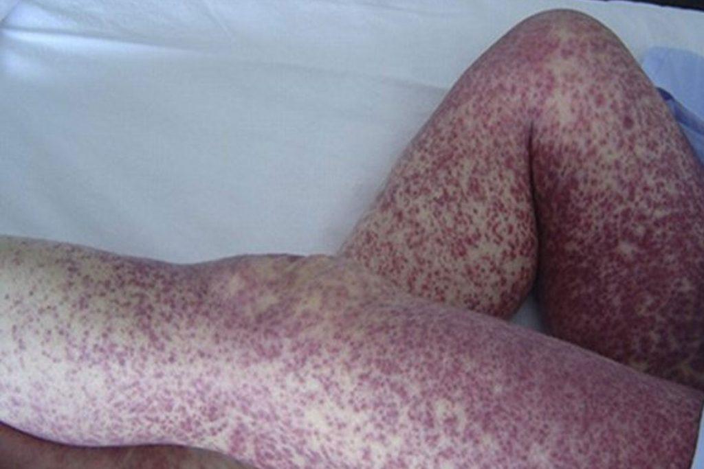 Какие заболевания переносят вши - сыпной тиф