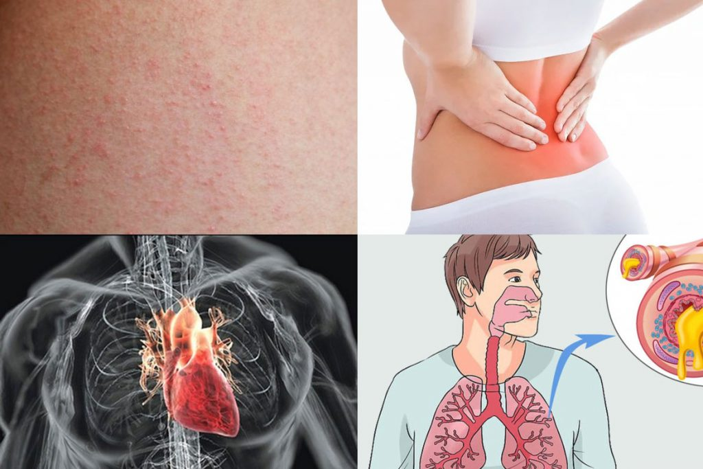 Какие заболевания переносят вши - возвратный тиф