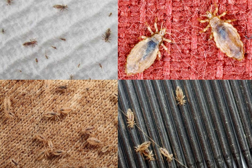 Платяной педикулез – как распознать укусы - фото вшей