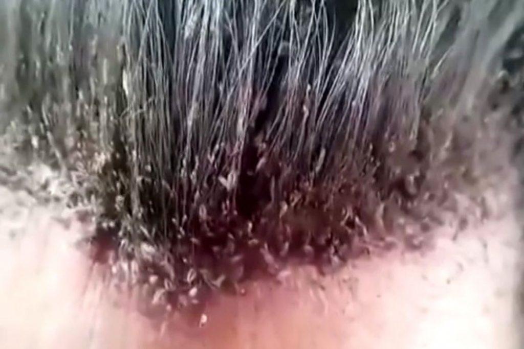 Сколько живут вши и гниды вне головы человека - фото
