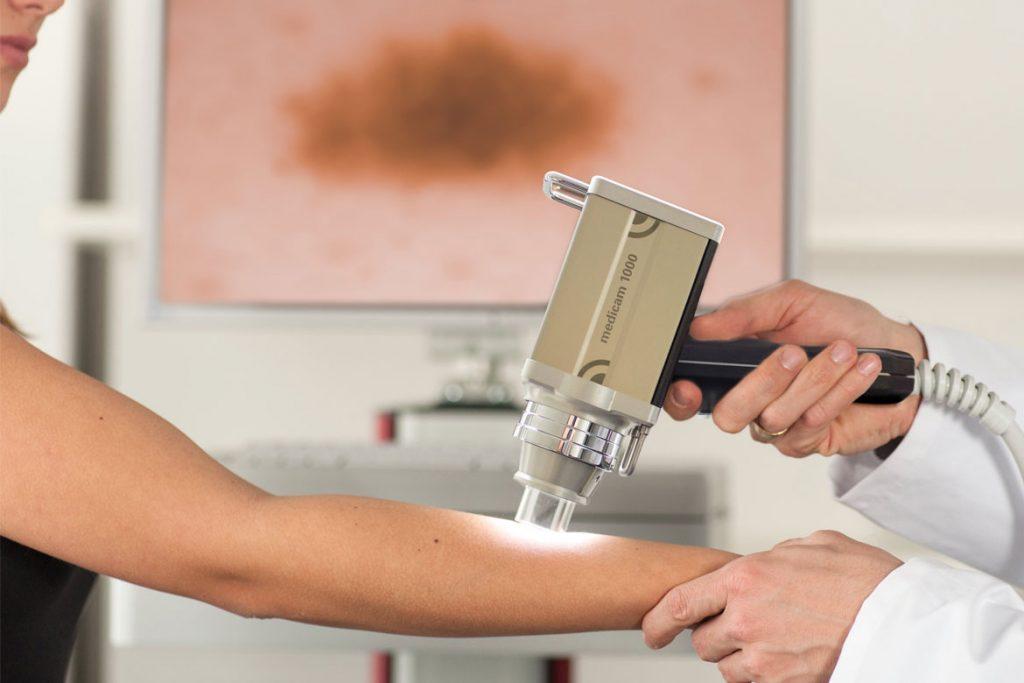 Лобковый педикулез: симптомы и лечение - Видеодерматоскопия