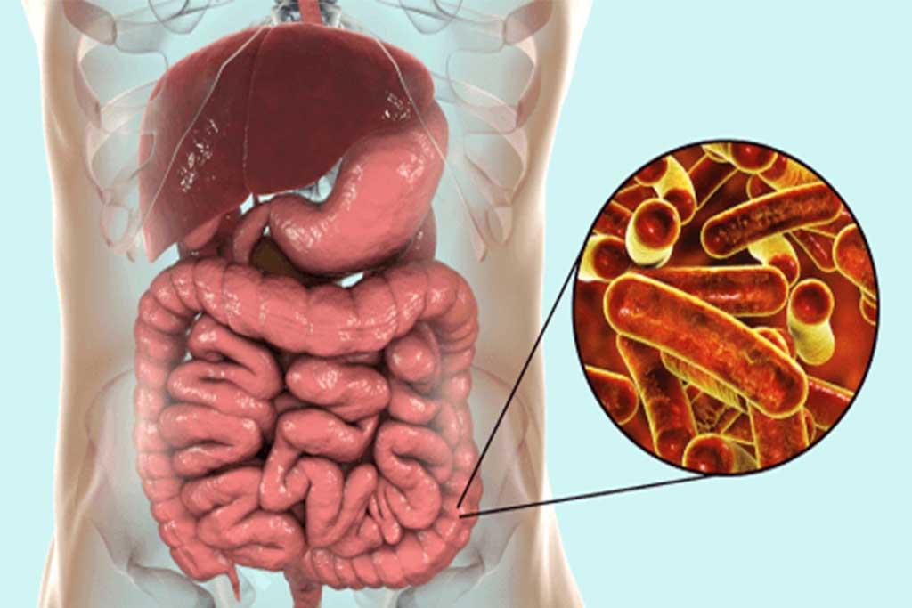 От тараканов возможно заразится дизентерией